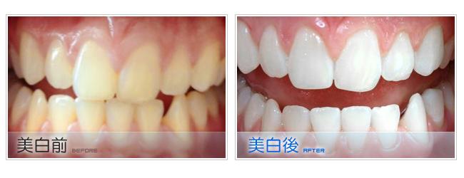 牙齒美白我適合做冷光美白嗎?