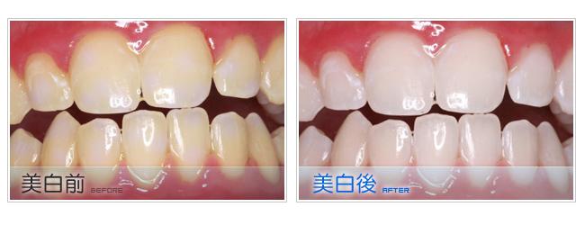 牙齒美白會痛嗎?