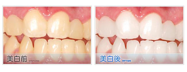 牙齒矯正居家美白和雷射美白有何不同?