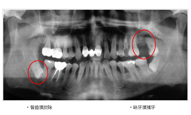 ct立体重建   ct微创植牙   ct断层x光扫描 - 信合美