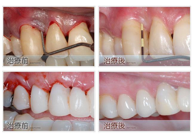 《百雷射治療的優點一》-以最天然的元素保健牙齒和口腔 大部分的手術處治不需要麻醉,全程無痛治療。 能夠非常精準的除去蛀洞的腐敗物,保存更多的正常牙齒結構。 減少高速鑚牙時所產生的細微損傷,防止摩擦時所產生的熱對牙齒造成損傷。 減少補牙後的酸痛和敏感。 增加填充材質的黏著力150%以上。 補綴後的牙齒較傳統治療更耐用。    《百雷射治療的優點二》-美容治療安全恢復快 幾乎不出血,止血效果好。 治療後不會腫脹,恢復時間快。 手術後就可以馬上進食,恢復正常生活。 可以實際情況進行或要求,同