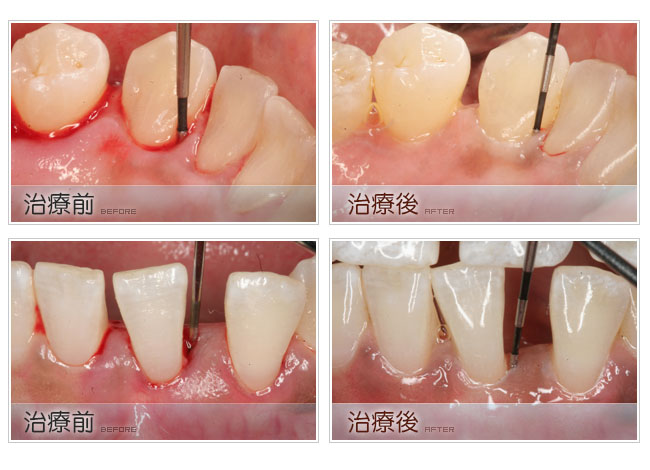 减少补牙后的酸痛和敏感